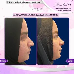 جراح بینی در تبریز