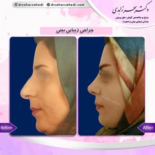 جراحی-زیبایی-بینی-32