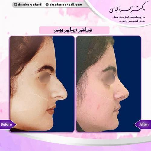جراحی-زیبایی-بینی-35