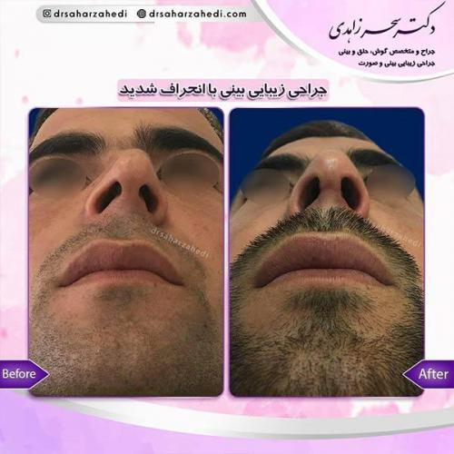 جراحی-زیبایی-بینی-39