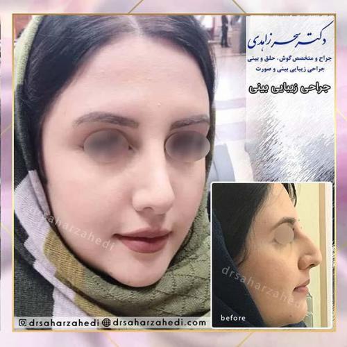 جراحی-زیبایی-بینی-42