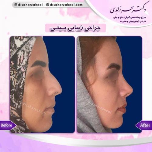 جراحی زیبایی بینی 6